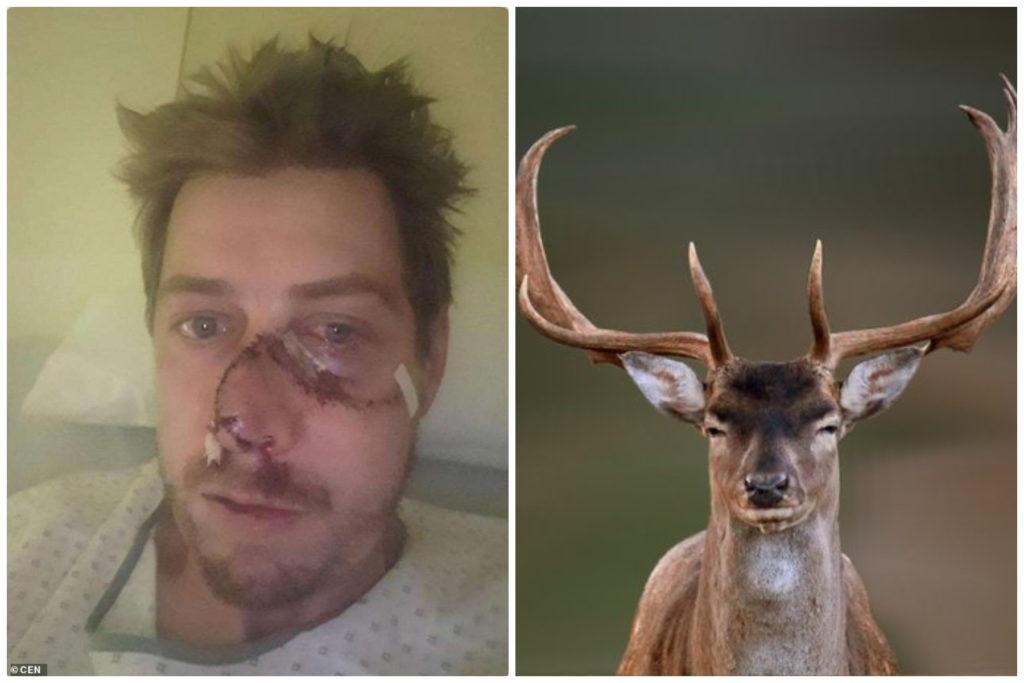 Estaba cazando y terminó con la cara rota cuando un ciervo intentaba escapar
